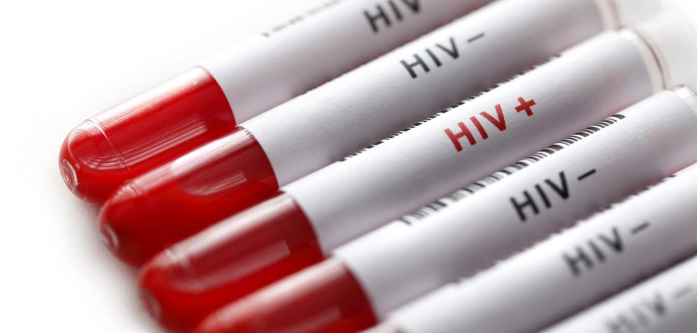 H πρώτη αναγνώριση ενός νέου ιού που αργότερα θα ονομαστεί AIDS