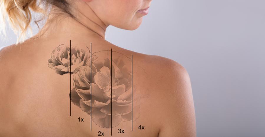 Tattoo removal - Επέλεξε το καλύτερο ή τίποτα